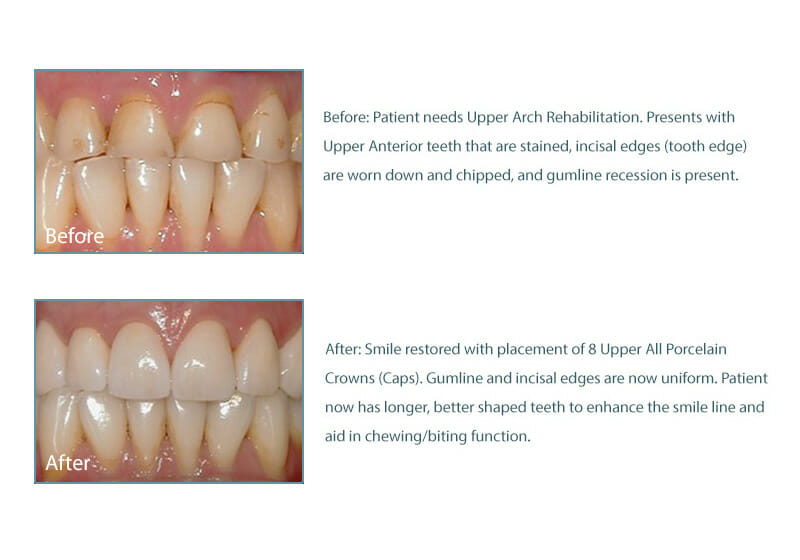 before and after picture of patient with 8 porcelain crowns