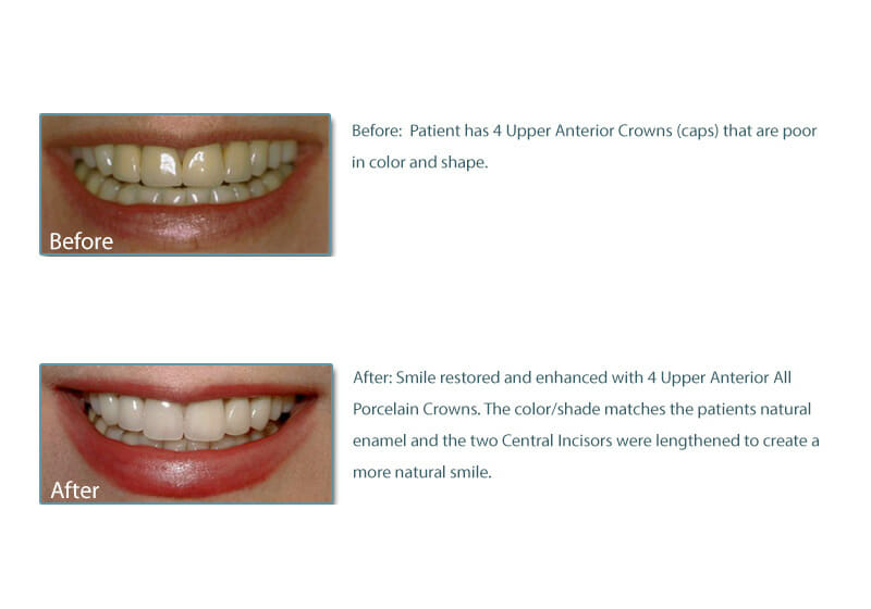 before and after picture of 4 porcelain crowns